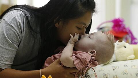 A surrogate baby born in Thailand with Down's Syndrome